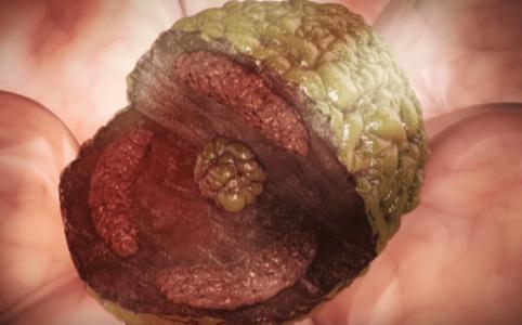 Darstellung einer Krebszelle, inkl. Querschnitt