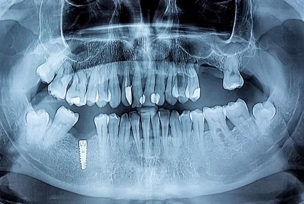 Panorama-Röntgenbild Zähne inkl. toter Zähne